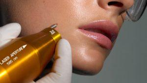 trattamento rughe laser non invasivo