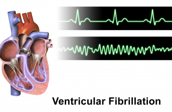 problematica fibrillazione ventricolare
