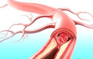 troppo colesterolo arterie conseguenze
